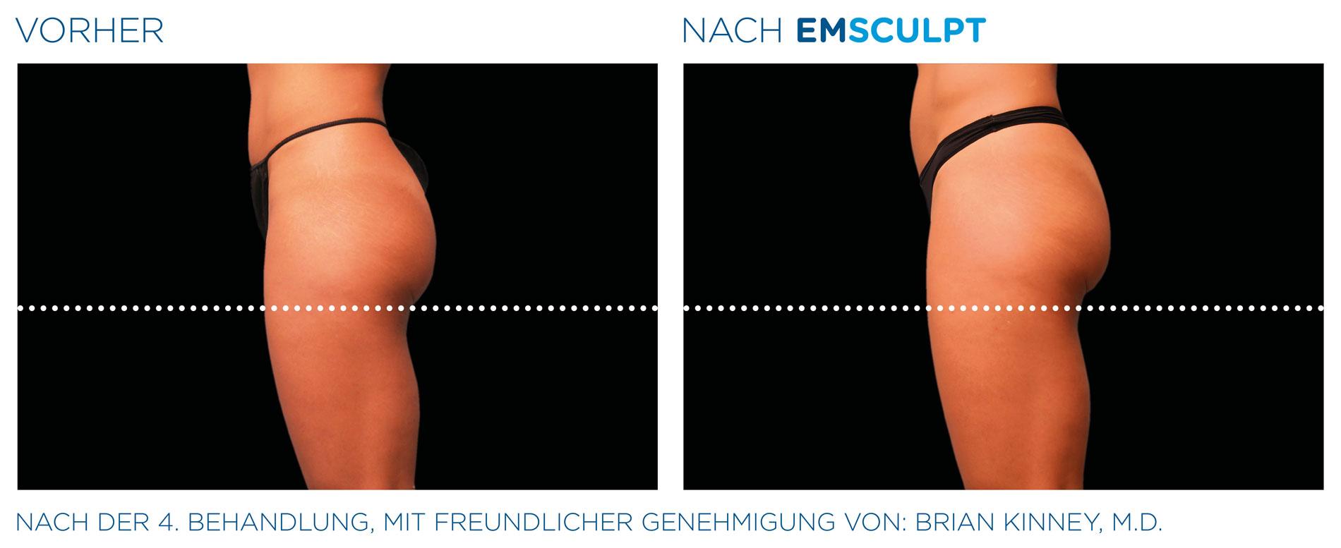 EMSculpt Vorher-Nachher