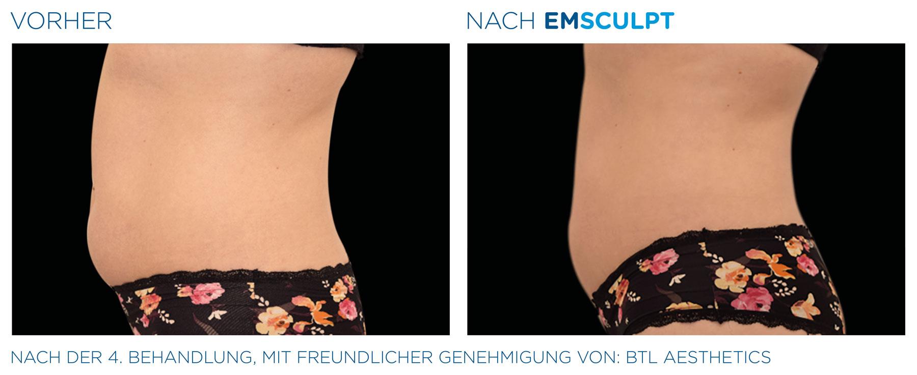 EMSculpt Vorher-Nachher-Bild Bauch